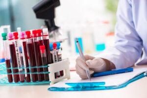Badania dotyczące diagnostyki wirusa SARS – CoV 2
